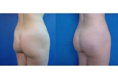 Gluteoplastia Femenina