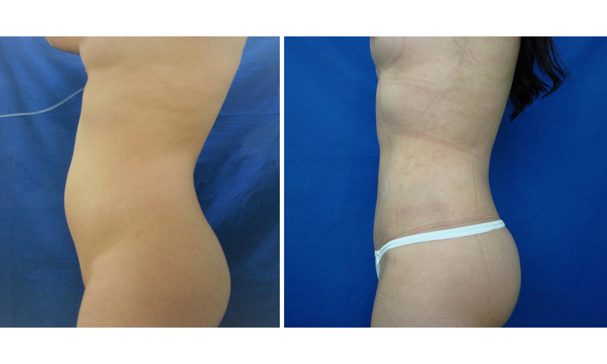 Lipectomía - Abdominoplastia Femenina