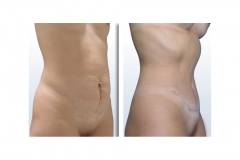 Lipectomía - Abdominoplastia Femenina