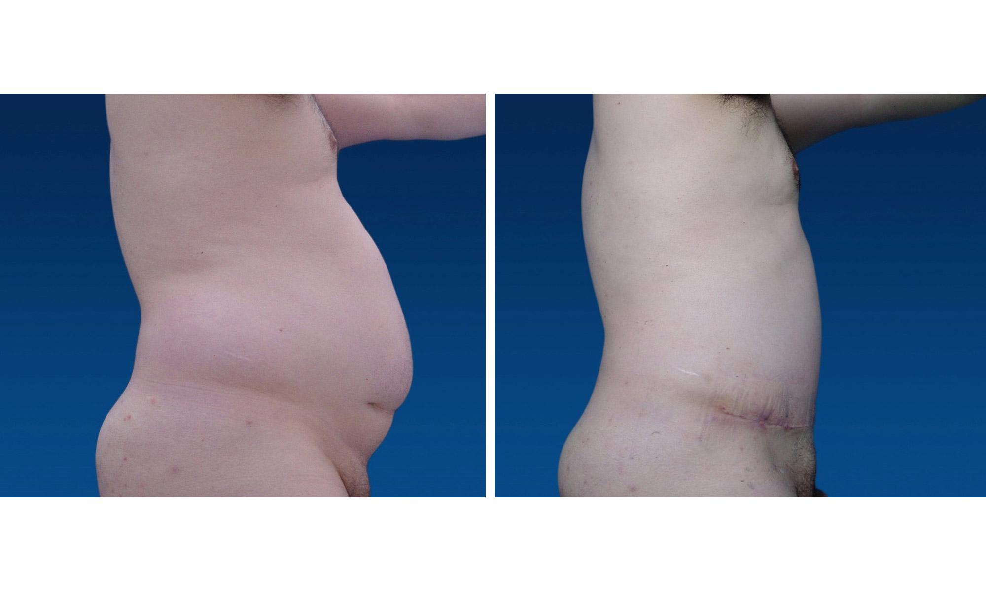 Lipectomía - Abdominoplastia Masculina