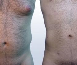 Liposucción Láser Masculina