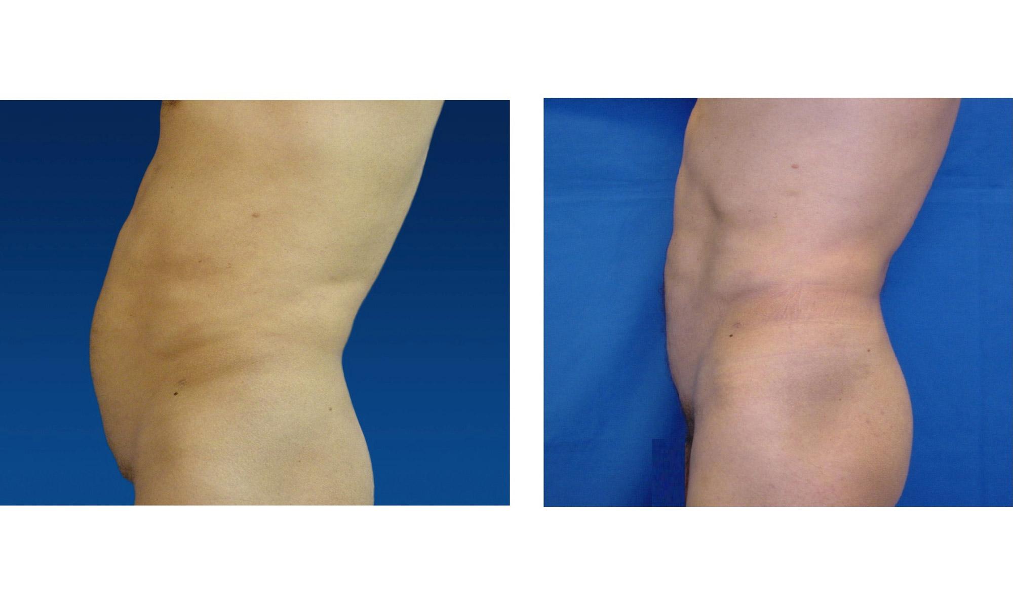 Liposucción o Lipoescultura Masculina