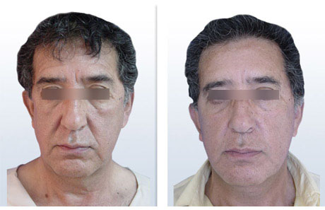 Rejuvenecimiento Facial Masculino