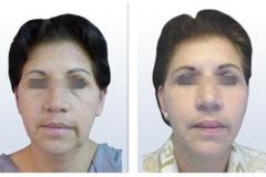Rejuvenecimiento Facial Femenino