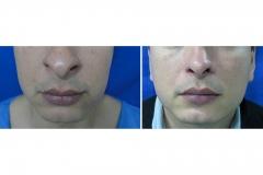 Reducción Narinas - Rinoplastia Masculina
