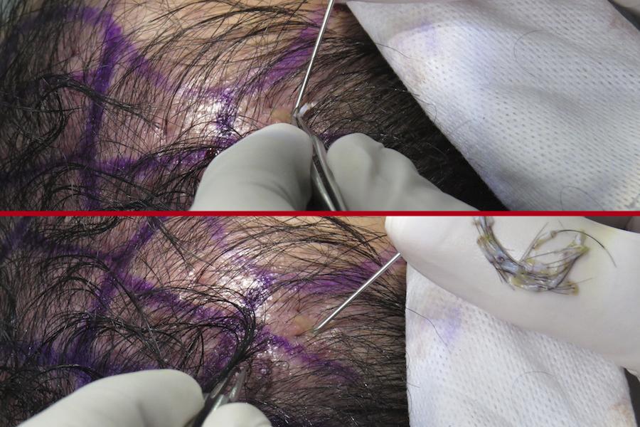 Hair Transplant in Bogota